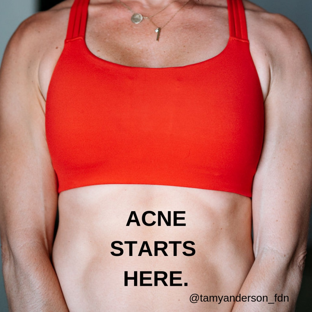 Do You Suffer From Acne?